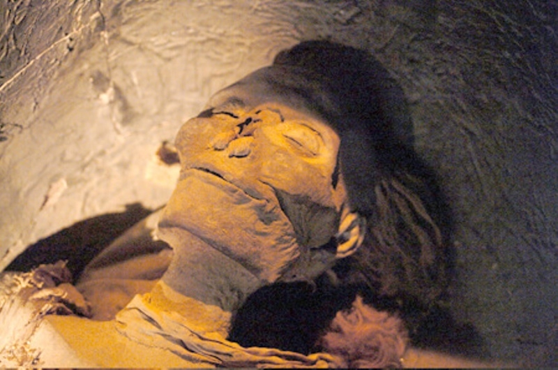 The mummy of Hatshepsut  shows signs of arthritis, many dental cavities and root inflammation and pockets, diabetes, and bone cancer.